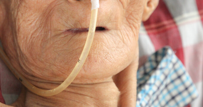 Elderly person connected to oxygen | Care Home Advice